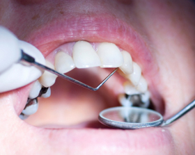 Extraction - Dentist around Randolph NJ